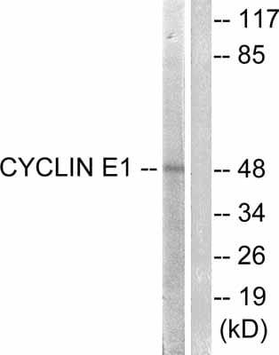 Western blot - Anti-Cyclin E1 antibody (ab52189)