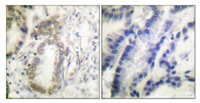 Immunohistochemistry (Paraffin-embedded sections) - CEBP Alpha (phospho S21) antibody (ab52193)