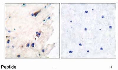 Immunohistochemistry (Paraffin-embedded sections) - Phospholipase C beta 3 antibody (ab52199)
