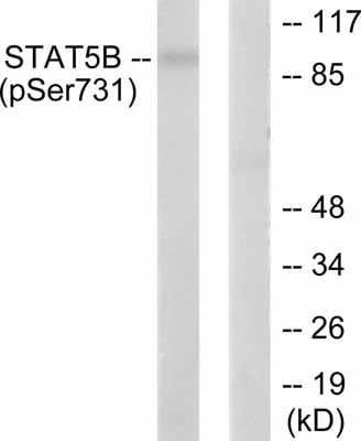 Western blot - STAT5b (phospho S731) antibody (ab52211)