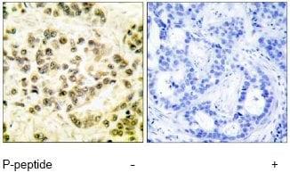 Immunohistochemistry (Paraffin-embedded sections) - STAT5b (phospho S731) antibody (ab52211)