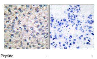 Immunohistochemistry (Formalin/PFA-fixed paraffin-embedded sections) - alpha 1 Catenin antibody (ab52227)