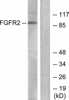 Western blot - FGFR2 antibody (ab52246)