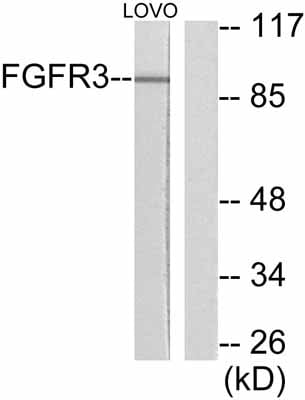 Western blot - FGFR3 antibody (ab52247)
