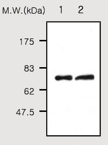 Western blot - C9 antibody [64E9] (ab52431)
