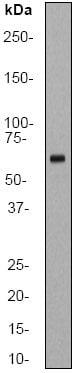 Western blot - hnRNP K antibody [EP943Y] (ab52600)