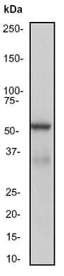 Western blot - MAP3K8 antibody [EP1103Y] (ab52613)