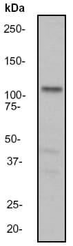 Western blot - Androgen Receptor antibody [EP670Y] (ab52615)