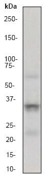 Western blot - CD40L antibody [EP462E] (ab52750)