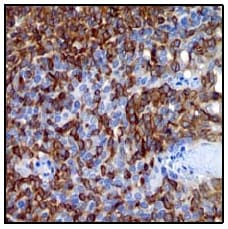 Immunohistochemistry (Formalin/PFA-fixed paraffin-embedded sections) - Anti-IL18 binding protein antibody [EP1088Y] (ab52914)