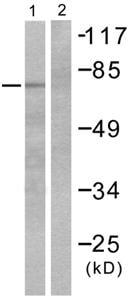 Western blot - MMP9 antibody (ab53018)