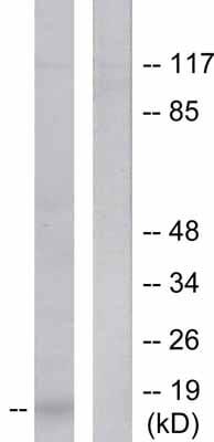 Western blot - CDKN2A/p14ARF antibody (ab53030)