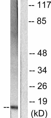Western blot - p15 INK4b antibody (ab53034)