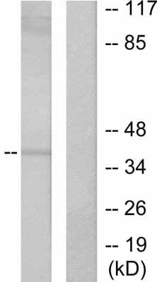 Western blot - PAX5 antibody (ab53046)