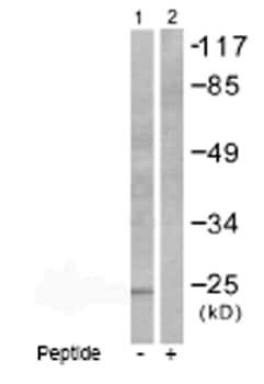 Western blot - PARK7/DJ1 antibody (ab53058)