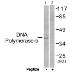 Western blot - DNA Polymerase beta antibody (ab53059)