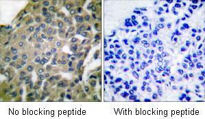 Immunohistochemistry (Paraffin-embedded sections) - GRP94 antibody (ab53075)