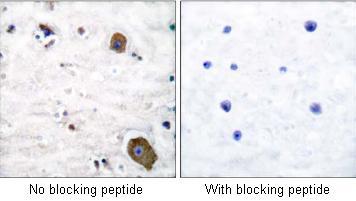 Immunohistochemistry (Paraffin-embedded sections) - GDNF Receptor alpha 1 antibody (ab53079)