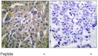 Immunohistochemistry (Paraffin-embedded sections) - hCG beta antibody (ab53087)