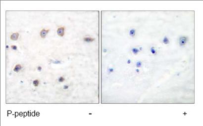 Immunohistochemistry (Paraffin-embedded sections) - alpha Adducin (phospho S726) antibody (ab53093)