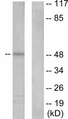 Western blot - Cytokeratin 20 antibody (ab53120)