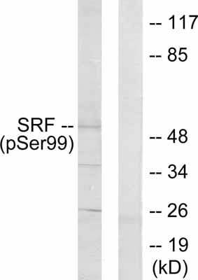 Western blot - Anti-Serum Response Factor SRF (phospho S103) antibody (ab53130)