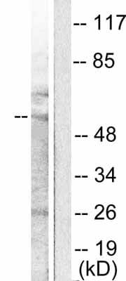 Western blot - MMP11 antibody (ab53143)
