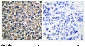 Immunohistochemistry (Paraffin-embedded sections) - MMP19 antibody (ab53146)