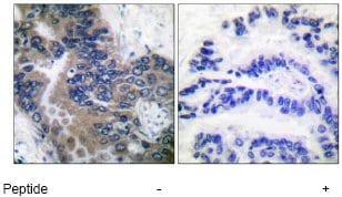 Immunohistochemistry (Paraffin-embedded sections) - APAF1 antibody (ab53152)