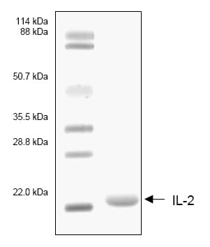 SDS-PAGE - IL2 protein (His tag) (ab53322)