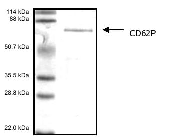 SDS-PAGE - CD62P protein (His tag) (ab53386)