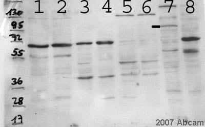 Western blot - SECISBP2 antibody (ab53534)
