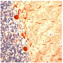 Immunohistochemistry (Formalin/PFA-fixed paraffin-embedded sections) - Calbindin antibody (ab53642)
