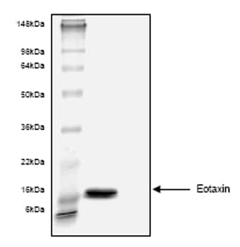 SDS-PAGE - Eotaxin protein (His tag) (ab53664)