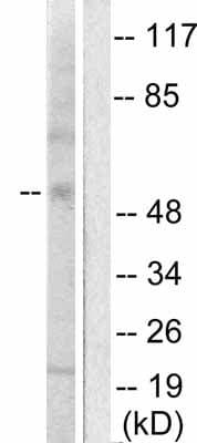Western blot - MMP13 antibody (ab53711)