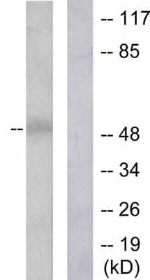 Western blot - Dynamitin antibody (ab53714)