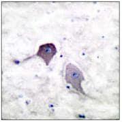 Immunohistochemistry (Paraffin-embedded sections) - Presenilin 1 antibody (ab53717)