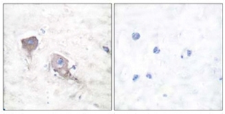 Immunohistochemistry (Paraffin-embedded sections) - SNAP25 antibody (ab53723)