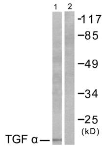 Western blot - TGF alpha antibody (ab53728)