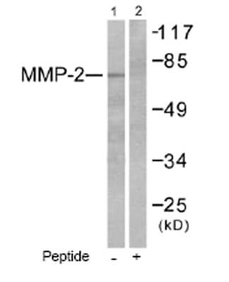 Western blot - MMP2 antibody (ab53771)