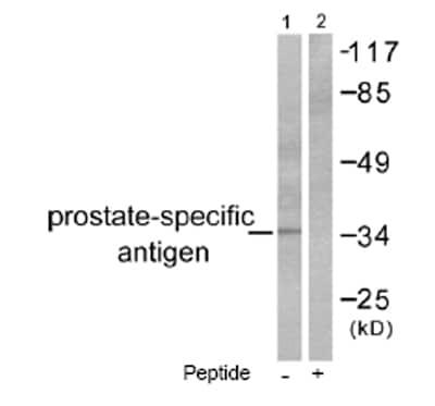 Western blot - Prostate Specific Antigen antibody (ab53774)