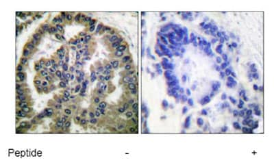 Immunohistochemistry (Paraffin-embedded sections) - TGF beta 2 antibody (ab53778)
