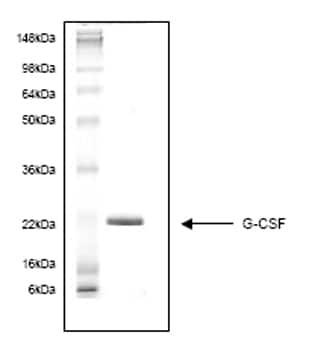 SDS-PAGE - G-CSF protein (His tag) (ab54137)