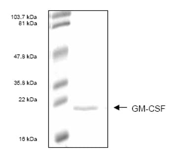 SDS-PAGE - GM-CSF protein (His tag) (ab54138)