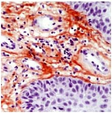 Immunohistochemistry (Formalin/PFA-fixed paraffin-embedded sections) - Tenascin C antibody [SPM319] (ab54348)