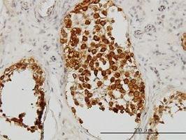 IHC-P - DAZ1 antibody (ab54607)