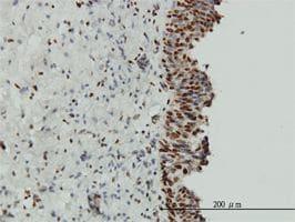 IHC-P - EWSR1 antibody (ab54708)