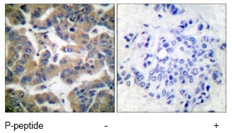 Immunohistochemistry (Paraffin-embedded sections) - Glucocorticoid Receptor antibody (ab55189)