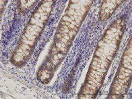 IHC-P - HADHSC antibody (ab55231)