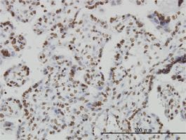 Immunohistochemistry (Formalin/PFA-fixed paraffin-embedded sections) - Anti-IL15 antibody (ab55282)